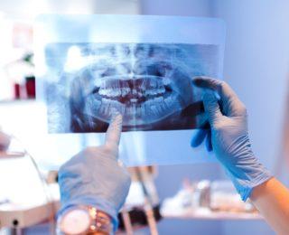 Les différentes anomalies dentaires