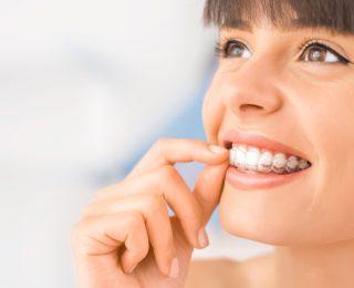 Appareil amovible et hygiène bucco-dentaire
